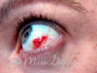 my eye in December